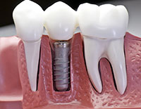 Dental Implants Portage MI